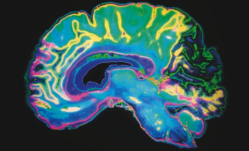 EmployeeBenefits-Dementia-May2014